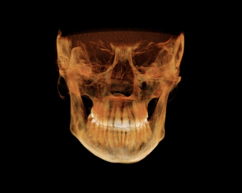http://oralradiologists.com/oralradiologist/wp-content/uploads/2017/08/cbct-reporting.jpg